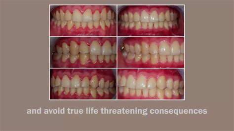[click]detooth Defender   Tested And Proven To Restore Tooth And Gums.