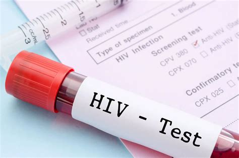 @ Early Signs Of Hiv In Men What Symptoms Should You Look Out For .