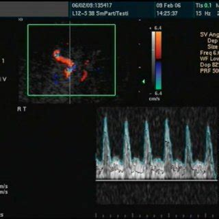 [pdf] Erectile Dysfunction In Paraplegic Males - Intech - Open.