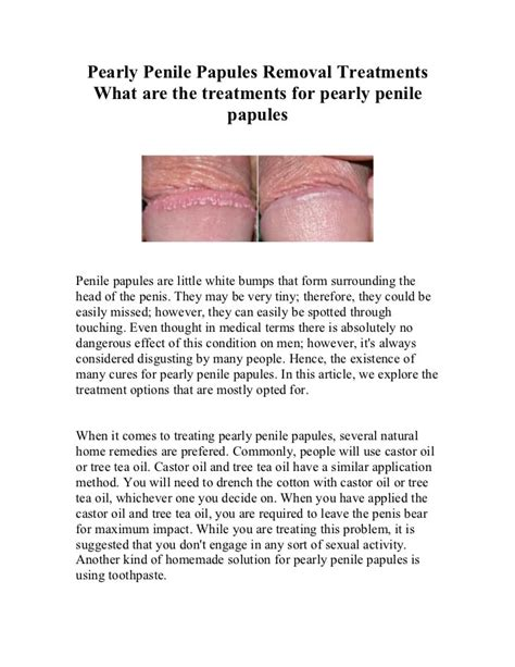 Exploring Easy Methods For Pearly Penile Papules Removal.