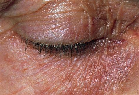 Eyelid Inflammation Blepharitis