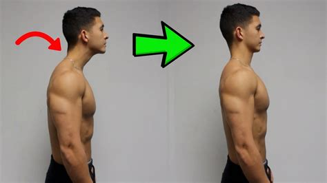 Fix Forward Head Posture! (daily Corrective Routine) - Youtube.