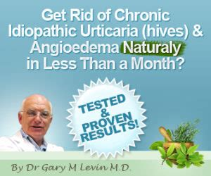 [click]full Urticaria Cure By Dr Gary M D  Official Review .