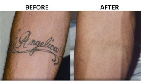 Get Rid Tattoo Now Promote Hottest Selling Apply Easy Cream.