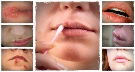[click]how Do You Cold Sore Free Forever - Highest Converter In