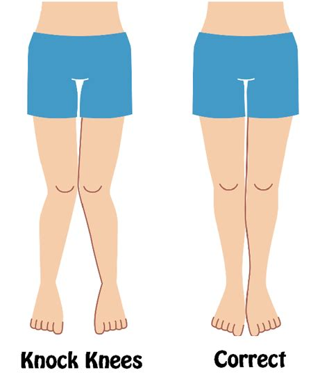 [click]how To Cure Knock Knees In 45 Days - Quora