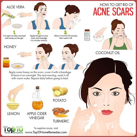 How To Get Rid Of Acne Scars Fast - Overnight Treatments, Home - Mirror.