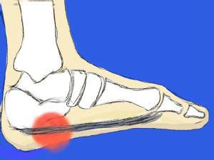[pdf] Icd 10 Code Plantar Fasciitis Right Foot.