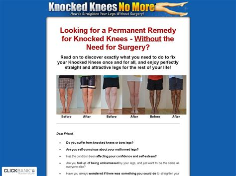 [click]knocklegs  Knocked Knees No More - Hot For Year 2018 .