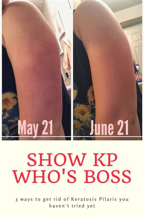 [pdf] Living With Kp - Get Rid Of Keratosis Pilaris Naturally.