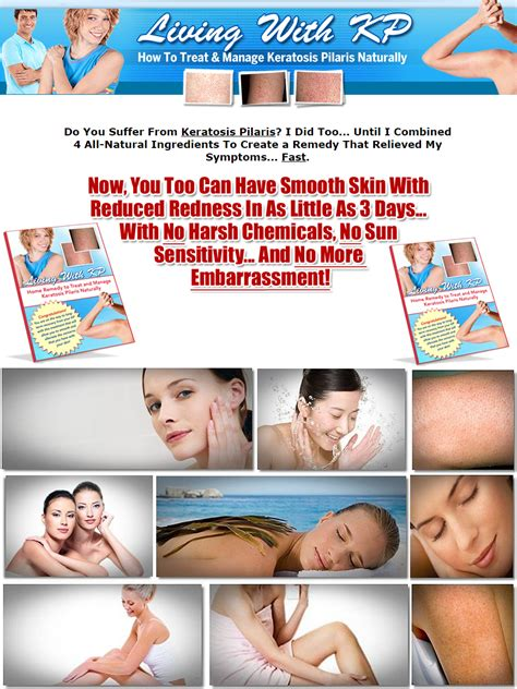 @ Living With Kp - Get Rid Of Keratosis Pilaris Naturally.