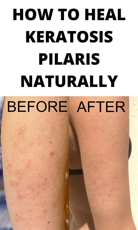 @ Living With Kp - How To Treat And Manage Keratosis Pilaris Naturally Living With Kp .