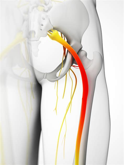 Lumbar Radiculopathy And Sciatica - Moveforwardpt.com.