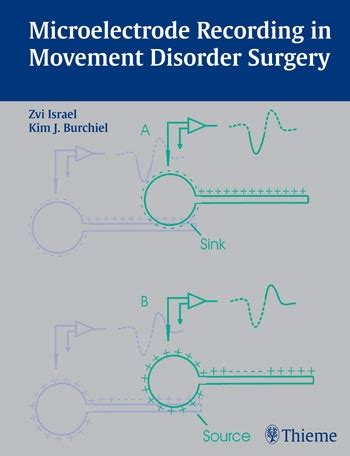 [pdf] Microelectrode Recording In Movement Disorder Surgery.