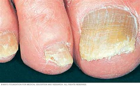 @ Nail Fungus - Symptoms And Causes - Mayo Clinic.