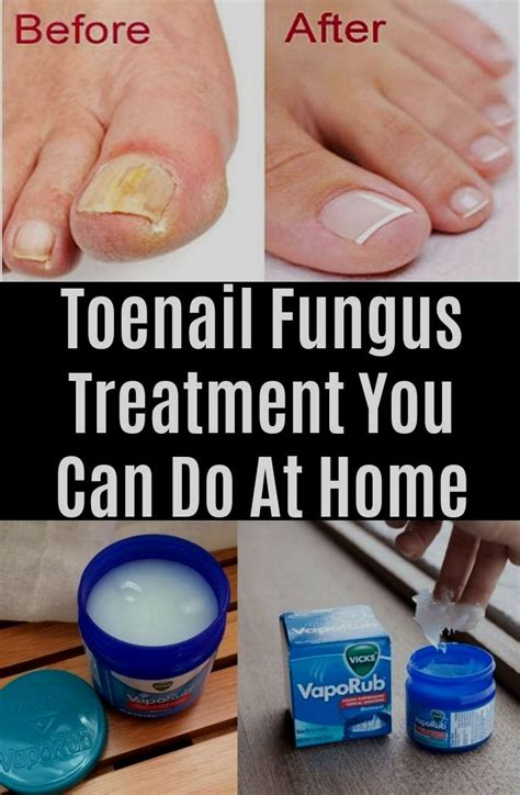 ⭕ Low Price Cure Toenail Fungus Naturally: Home Remedies To Treat ...