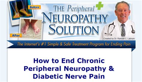 @ Neuropathy Recovery Program Review - Free Book Download.
