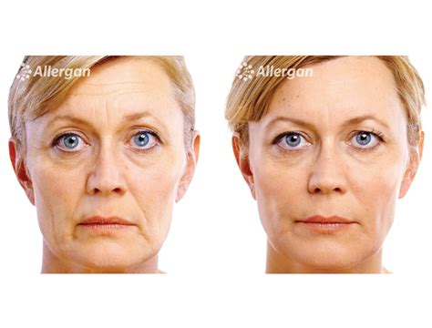 [click]new  Updated Distress-Free Aging Transformational Package.