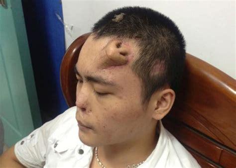 Nose Transplant