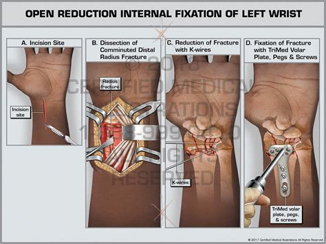 [pdf] Open Reduction And Internal Fixation Orif .