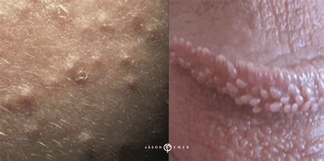 Pearly Penile Papules (white Spots On The Penis): Symptoms And.