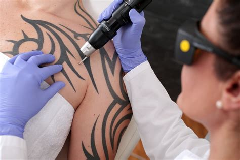 [click]picosure Laser Tattooentfernung   Methoden  Technik .
