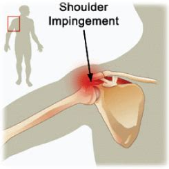 [click]shoulder Impingement Solution Product Review  Shoulder Pain Syndrome Exercises Treatment No Surgery.
