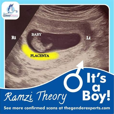 [click]simple The First Baby Gender Determination Guide Plans .