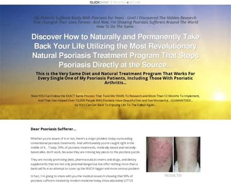 [click]the Psoriasis Program - Permanent Psoriasis Solution By Dr .