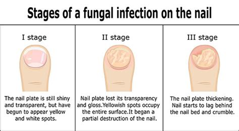 [click]toenail Fungus Pictures Treatment Causes Symptoms And More.