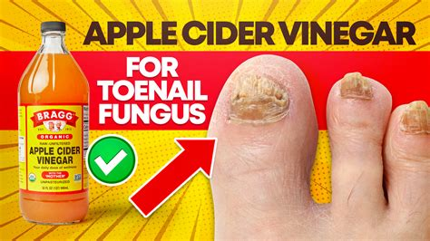 ✓ Buy Toenail Fungus Treatment Using Apple Cider Vinegar Fast On Sale