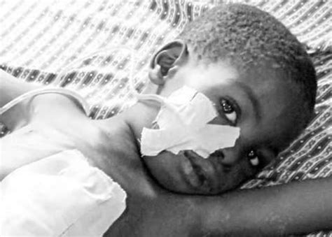 Typhoid Fever Victims