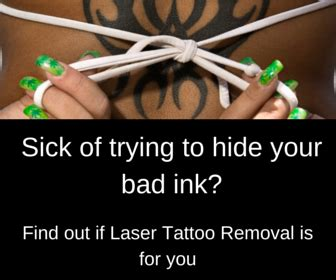[click]zap Me Up - Your Guide To Laser Tattoo Removal Tania .