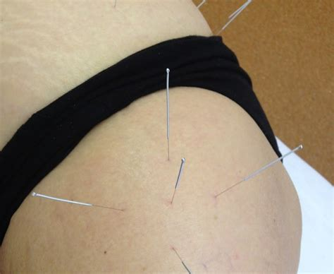 acupuncture and hip flexor