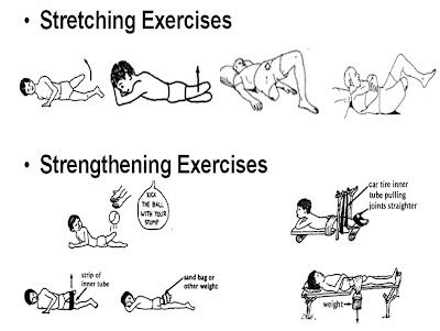 agonist muscles in hip flexion contracture in transfemoral amputees