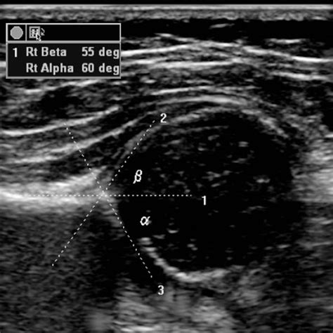 alpha angle in hip ultrasound