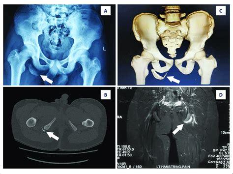 anatomy of hip flexor and ischial tuberosity avulsion mris