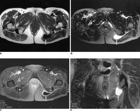 anatomy of hip flexor and ischial tuberosity bursitis mri knee