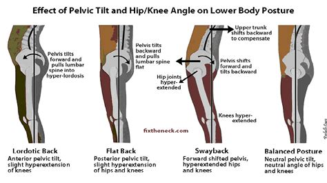 anterior hip musculature forces war record