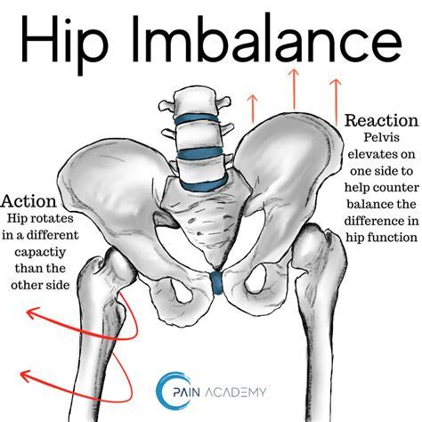 anterior pelvic tilt hip pain