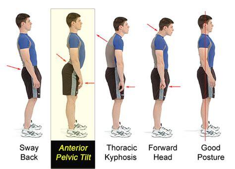 anterior pelvic tilt how to fix