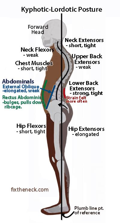 are the hip flexors tight in lumbar lordosis posture children