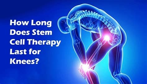 arthritis knee treatment with stem cells