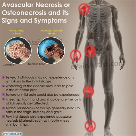 avascular necrosis of the hip symptoms pain