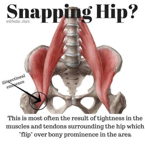 back of hip snapping causes