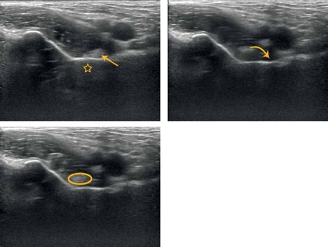 back of hip snapping ultrasound