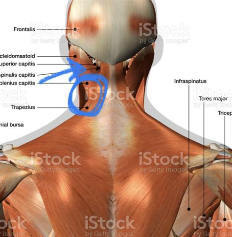 bad headache and neck pain on left side