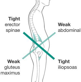 best way to stretch hip flexor muscles iliopsoas syndrome after total hip