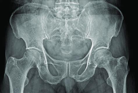 bones of the back hip and pelvis pathologies