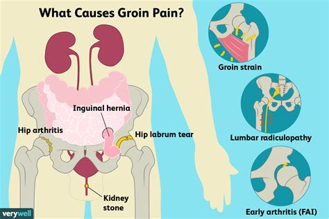 burning pain in back hip and groin
